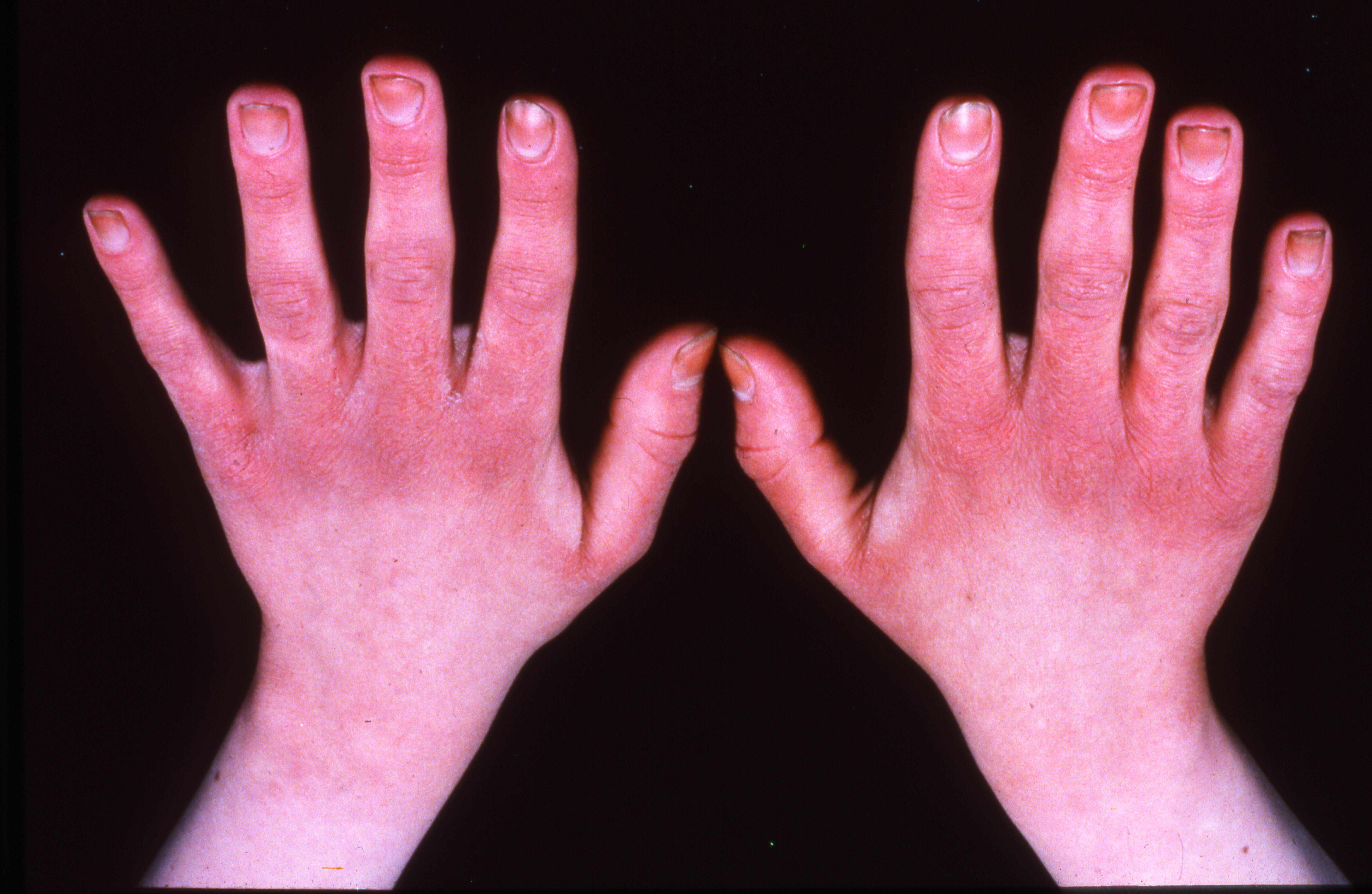 Kuivat Kädet
