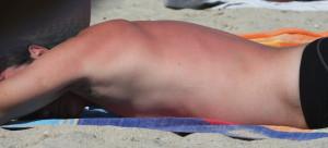 sunburnt man sunbathing